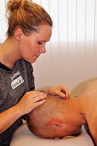 akupunktur i nakken